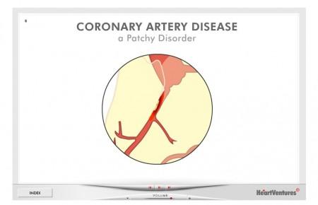 HeartVentures Coronary Artery Disease Animated Slide